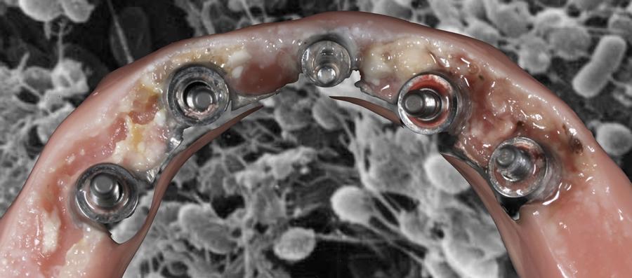 オールオン4上部構造の裏側に蓄積した細菌・バイオフィルム