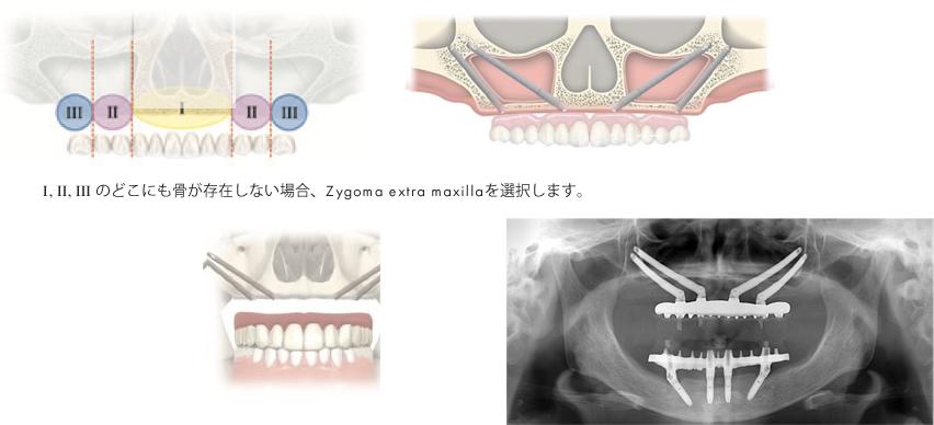 zygoma extra maxilla